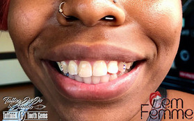 Harris pretty tooth gems.jpg
