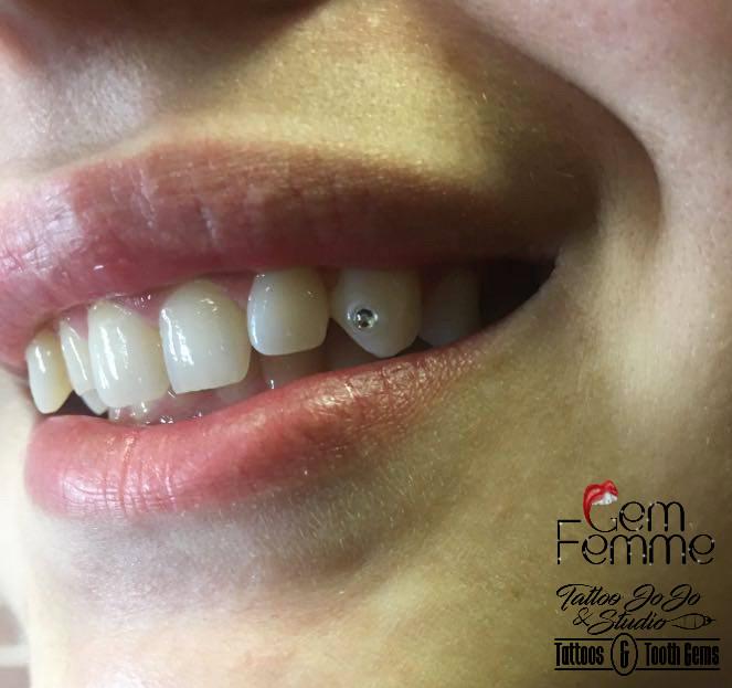 Cassandra's sister tooth gem.jpg