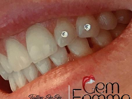Tooth Gem Gone BAD!