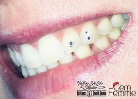 Kelly's trio tooth gems.jpg