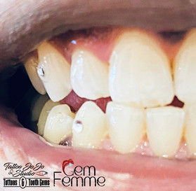 Walker tooth gems.jpg