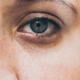 come-eliminare-le-occhiaie-scure-1280x64