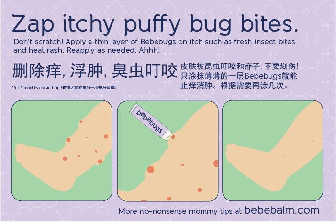 baby tips big_itchy bug bites.jpg