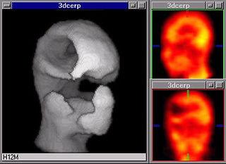 XAplicaciones Neurologicas.jpg