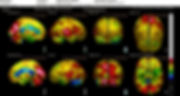 NeuroGamParaWEB_Baseline 3D Perfusion at