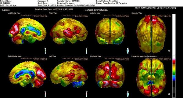 NeuroGamParaWEB_Baseline 3D Perfusion at