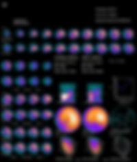 SayagoAbel1118FRA.jpg