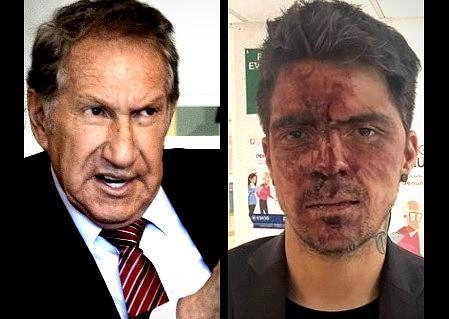 César  D'Alessio denuncia al ex gobernador Arturo Montiel por golpiza