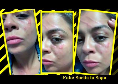 Demandan a Frida Sofía…¡por desfigurar a una mujer!