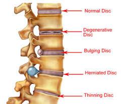 Disc Injury