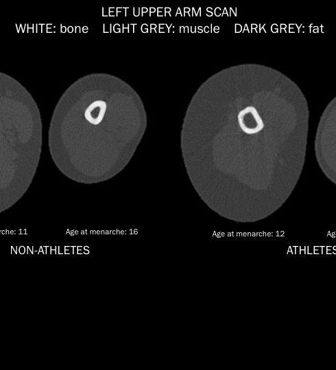 CT image.jpg