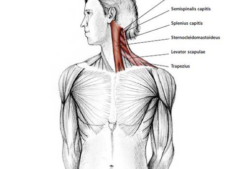 A crick in the neck can be irritating, painful, and can cause headaches, upper back pain, stiffness