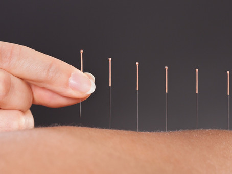 Acupuncture can help fibromyalgia