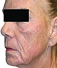 Anti Ageing-4.jpg