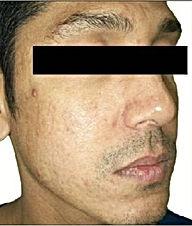Acne & Scar -4.jpg