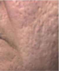 Acne & Scar -5.jpg