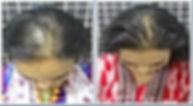 Hair Loss Baldness Revision 1.jpg