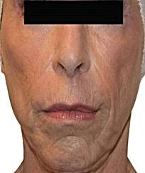 Anti Ageing-6.jpg