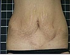 stretch marks -4.jpg