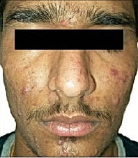 Acne & Scar -1.jpg