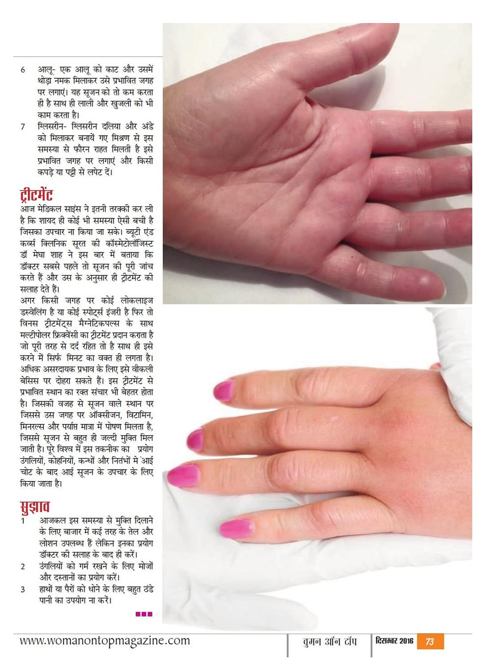 Get rid of swollen fingers with using simple kitchen ingredient