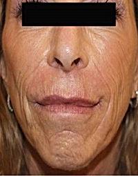 Anti Ageing-5.jpg