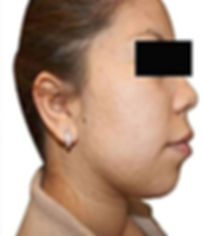 Acne & Scar -9.jpg