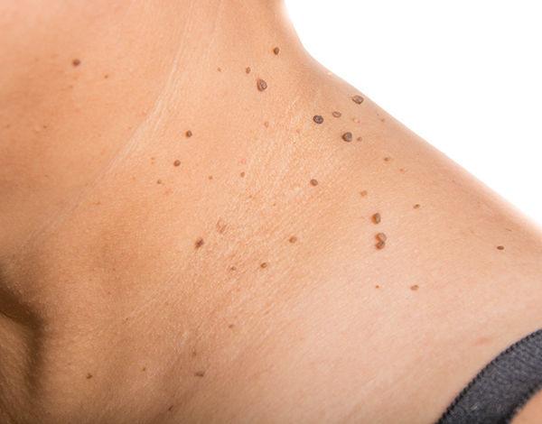Skin Tags Tumor Treatments