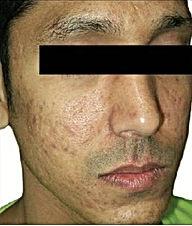Acne & Scar -3.jpg