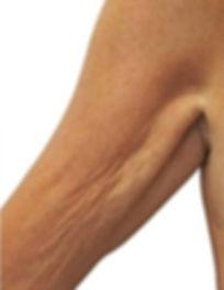 Stretch Marks-5.jpg