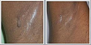 Mole,Skin,Tags,Vitiligo,Psoriasis.jpg