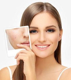 How-To-Get-Rid-Of-Acne-Scars-And-Pimple-