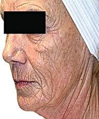 Anti Ageing-3.jpg