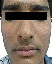 Acne & Scar -2.jpg