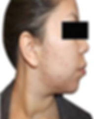 Acne & Scar -8.jpg