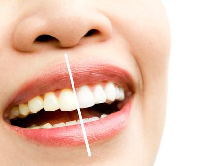 Beljenje zob v rokah profesionalcev. Pobelite jih do odtenka, ki ga želite!