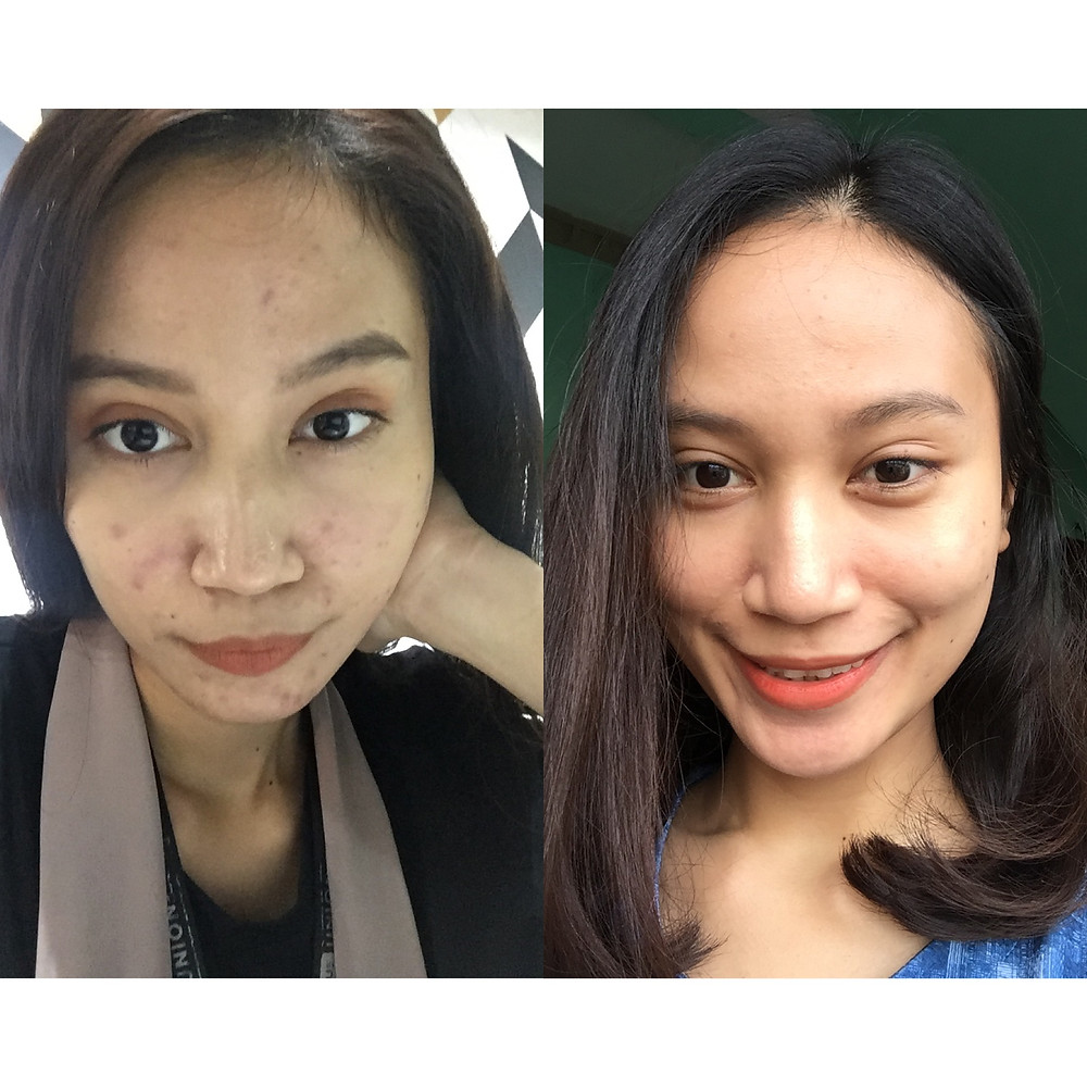 Acne Fighter - How I Clear My Face (Indonesia)