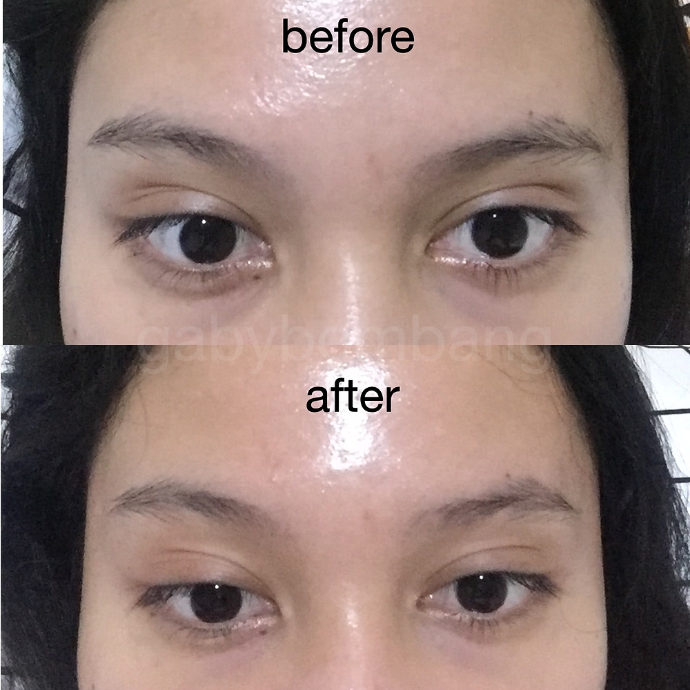 Review Lacoco Intensive Treatment Eye Serum