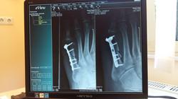 x-ray-924237_1920