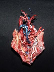 Anatomic Heart - Le Couer1F.jpg