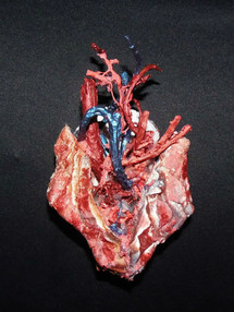 Anatomic Heart - Le Couer1F.jpg