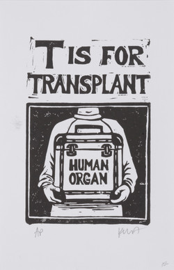 T is for Transplant