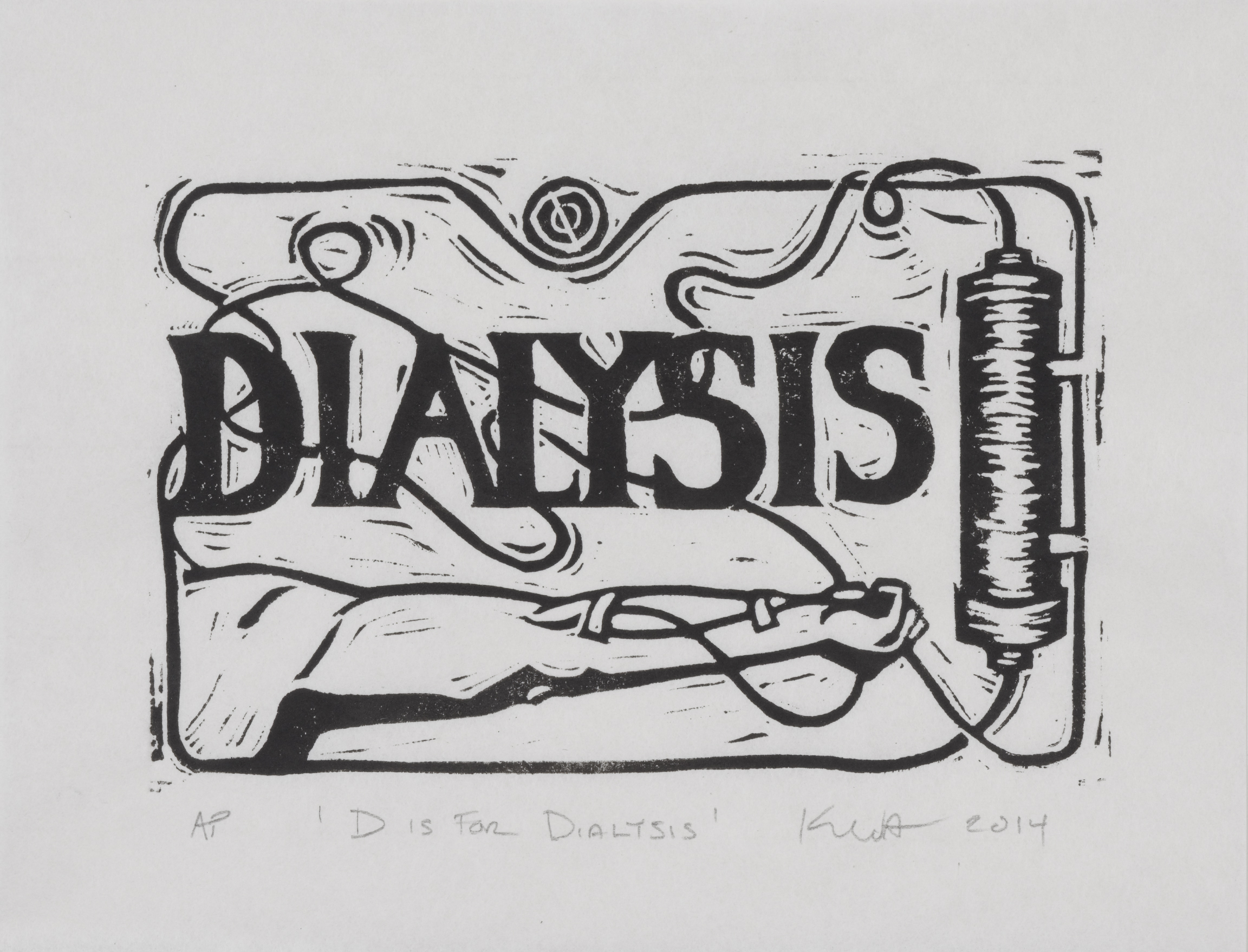 D is for Dialysis