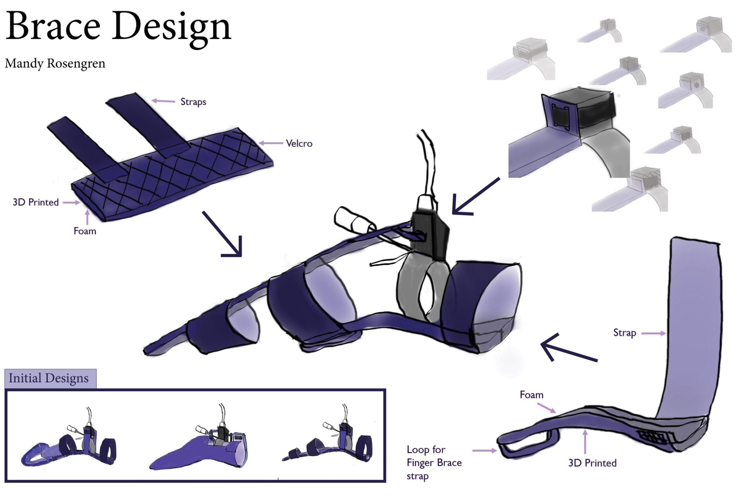 Brace Design