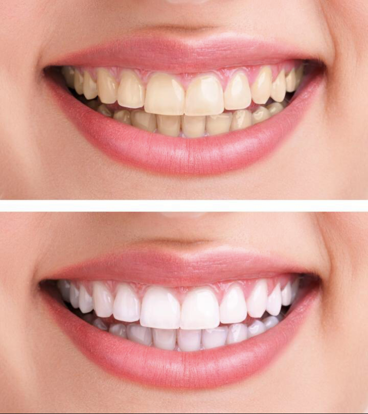 Teeth whitening has substantial effect on the whiteness of your smile. In this picture, patient is seen smiling both before and after getting her teeth whitened. Effects of teeth whitening vary from one person to another.