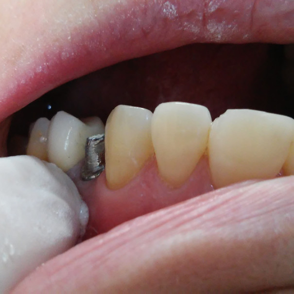 BEFORE THE IMPLANT