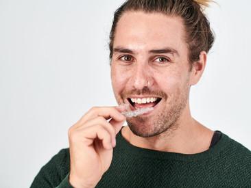 對於價錢相宜的矯齒方案感到陌生?以下正是你需要知道的事!