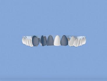 何為爆牙?如何在不戴牙箍下治療爆牙?
