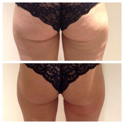 Back of Thigh Toning- Before & After