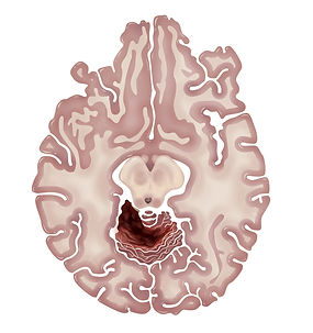 MRI render 5